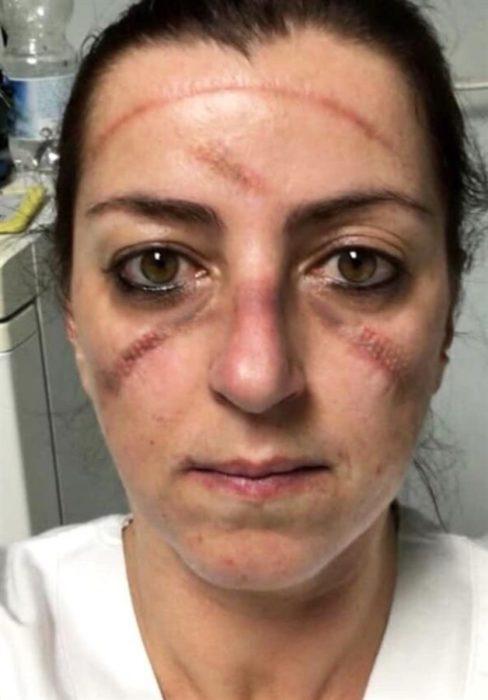 Mujer médico con el rostro marcado por el uso de mascarillas especiales