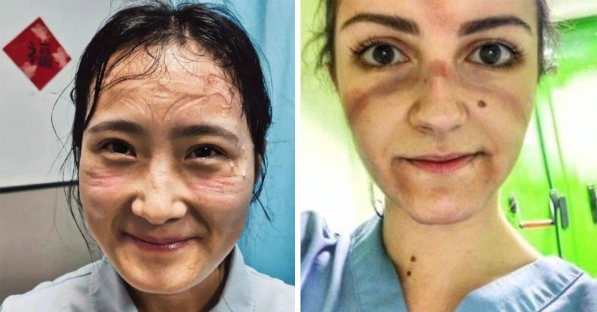 Así lucen los rostros de los médicos que luchan contra el coronavirus